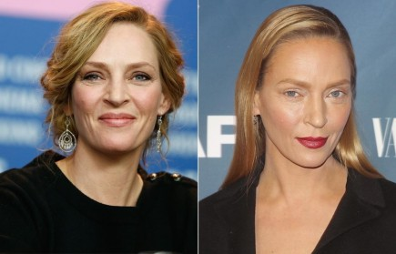 The Evidence Of Uma Thurman Plastic Surgery Tv